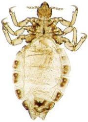 Body lice feed on skin but live only in clothing